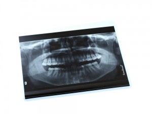 Radiografia panoramica 002