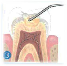conservadora-obturacion-dental-3