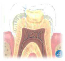 conservadora-obturacion-dental-4