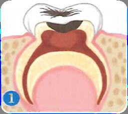 pulpotomia-especialidades-1