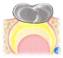 pulpotomia-especialidades-3.png